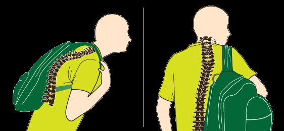 Si duele la espalda y el cuello que hacer