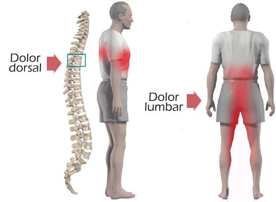dolor dorsal y dolor lumbar